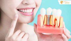 Những tác hại của trồng răng implant